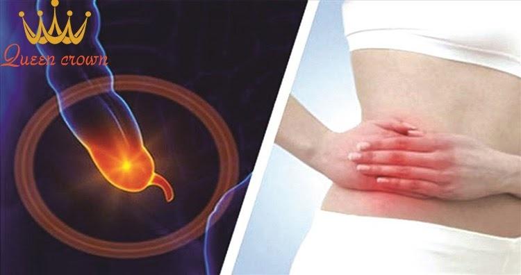 Đau thắt lưng bên phải do viêm ruột thừa